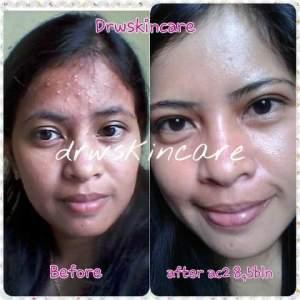 Image Result For Cream Drw Skincare Untuk Jerawat