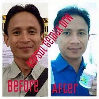 Testi Suplemen Gemuk Drw Skincare