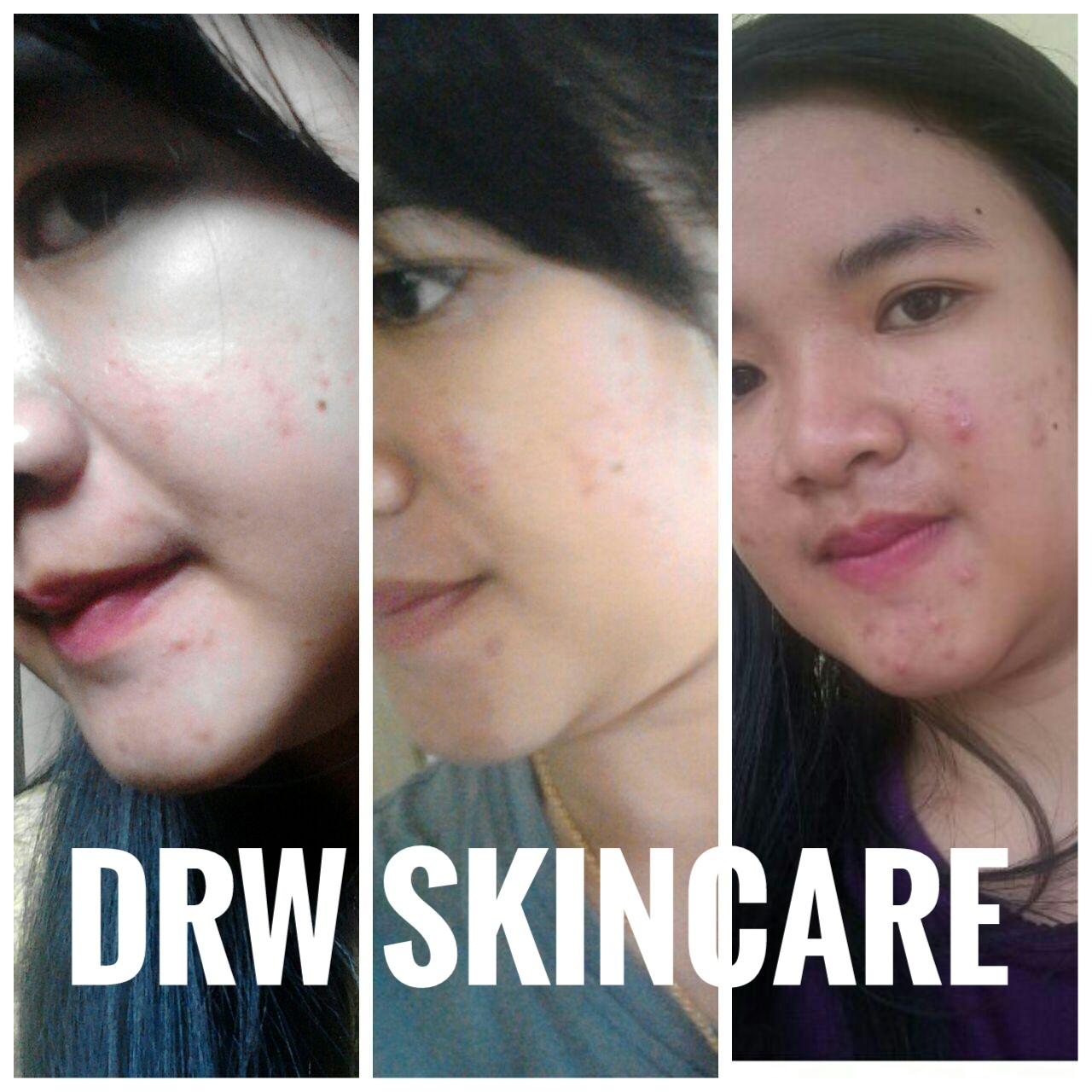 Testimoni Serum Acne Drw Skincare Skin Care 0822 1111 0407 Published At 1280 In